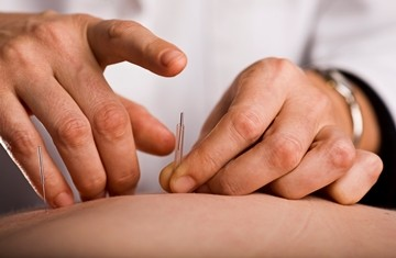 Dry Needling Nedlands perth physiotherapy