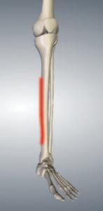 shin splints, nedlands physio, clinical pilates perth