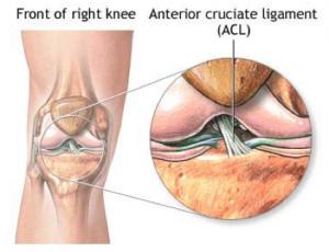 Knee ACL injuries