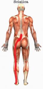 sciatica clinical pilates perth, nedlands physio