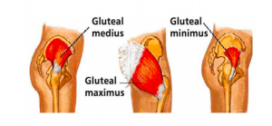 glutes, physio nedlands. perth physio sports